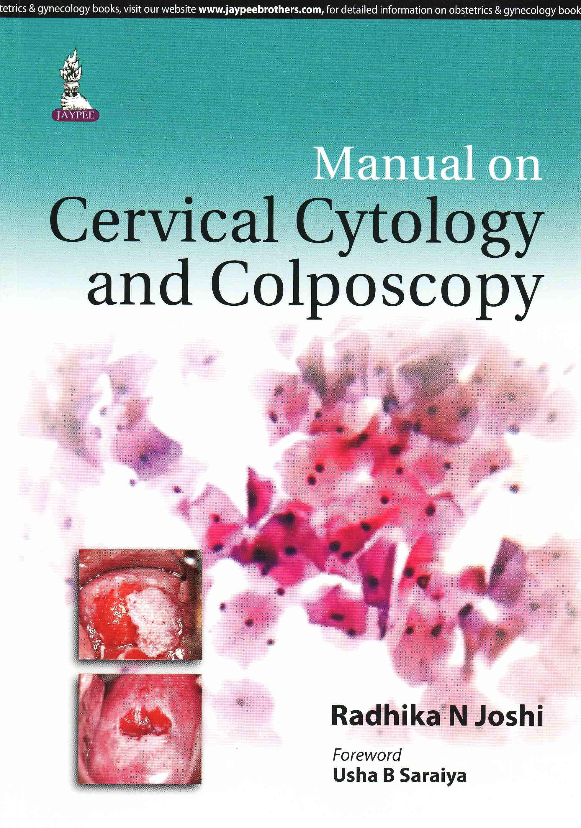 Portada del libro 9789351527640 Manual on Cervical Cytology and Colposcopy