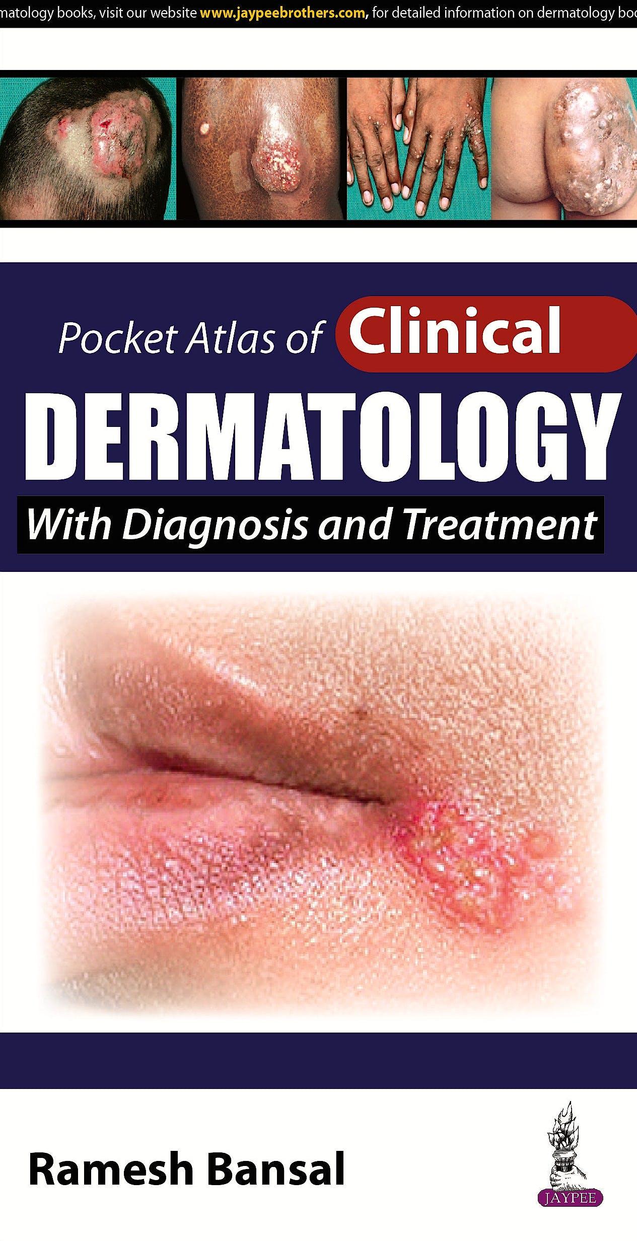 Portada del libro 9789351527688 Pocket Atlas of Clinical Dermatology