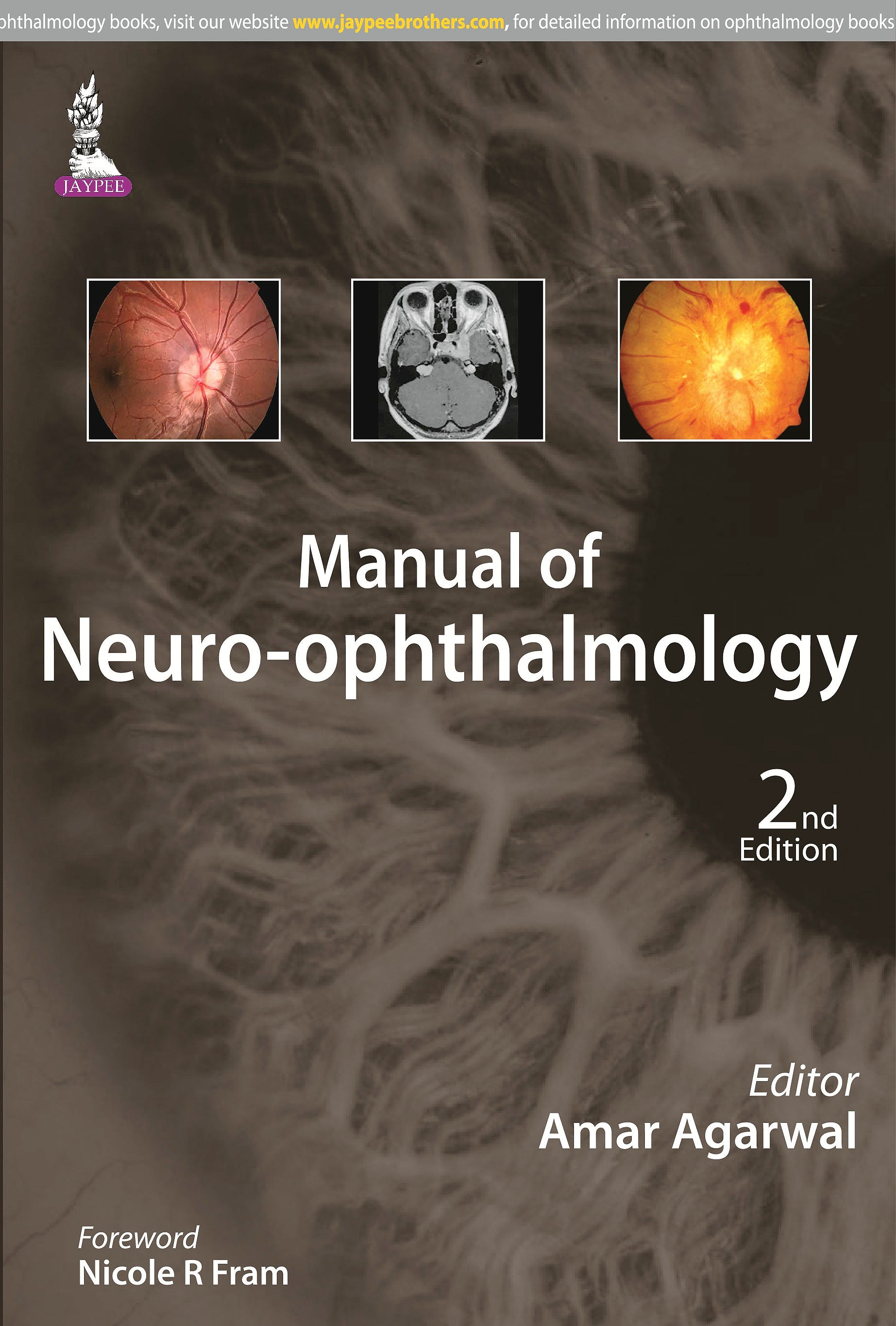 Portada del libro 9789351527824 Manual of Neuro-Ophthalmology
