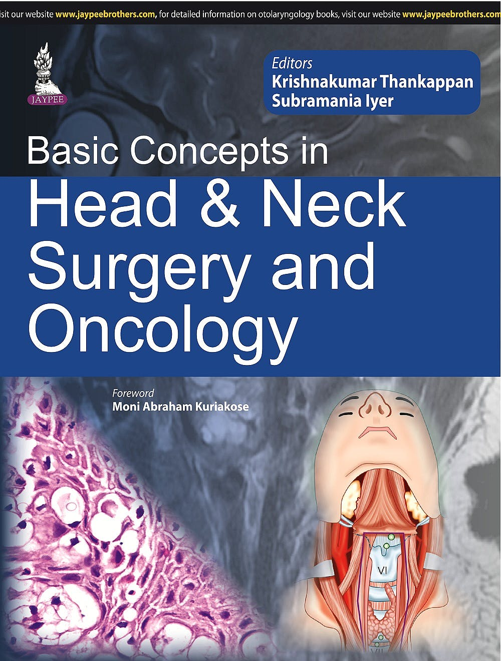 Portada del libro 9789351527916 Basic Concepts in Head and Neck Surgery and Oncology