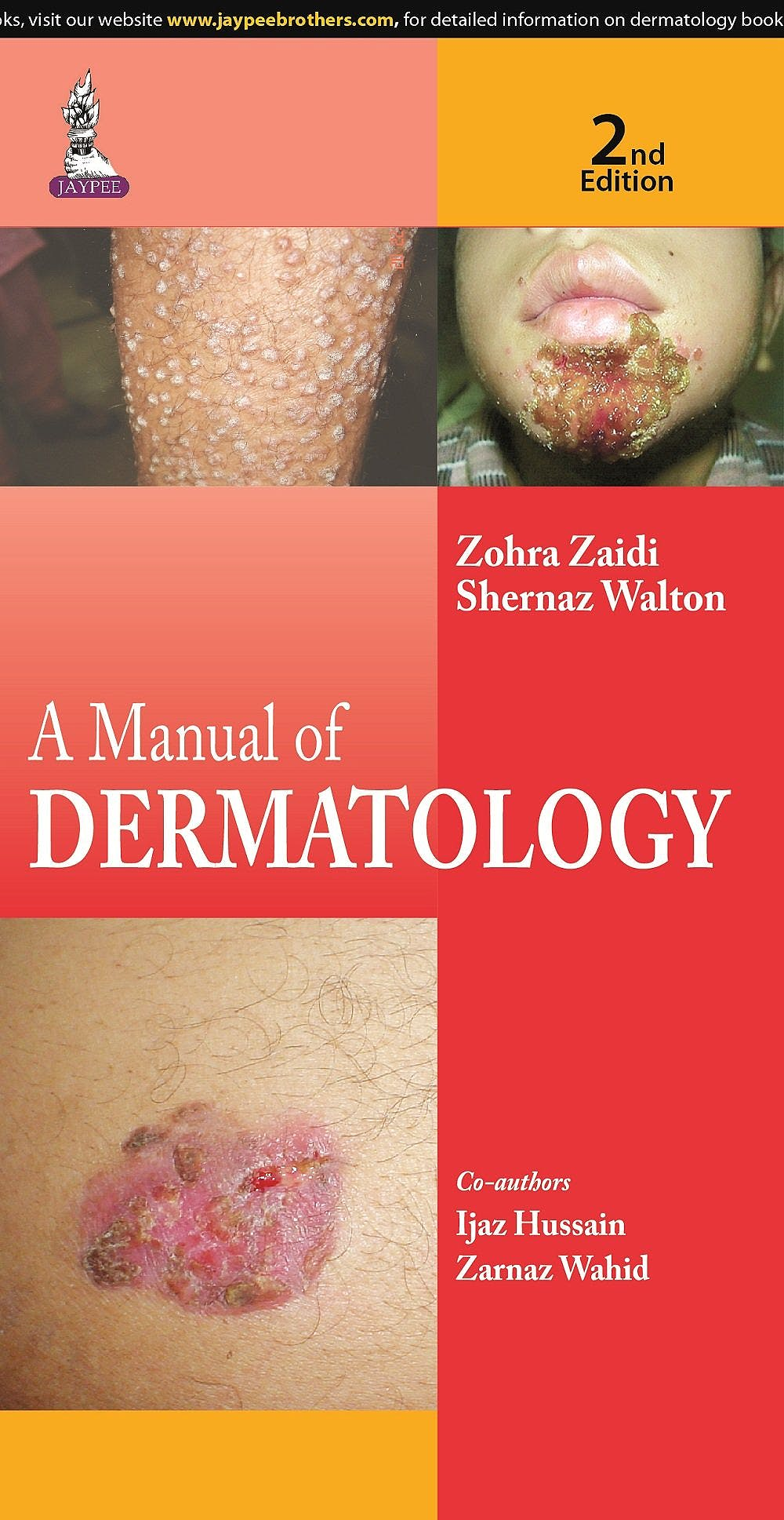 Portada del libro 9789351527923 A Manual of Dermatology