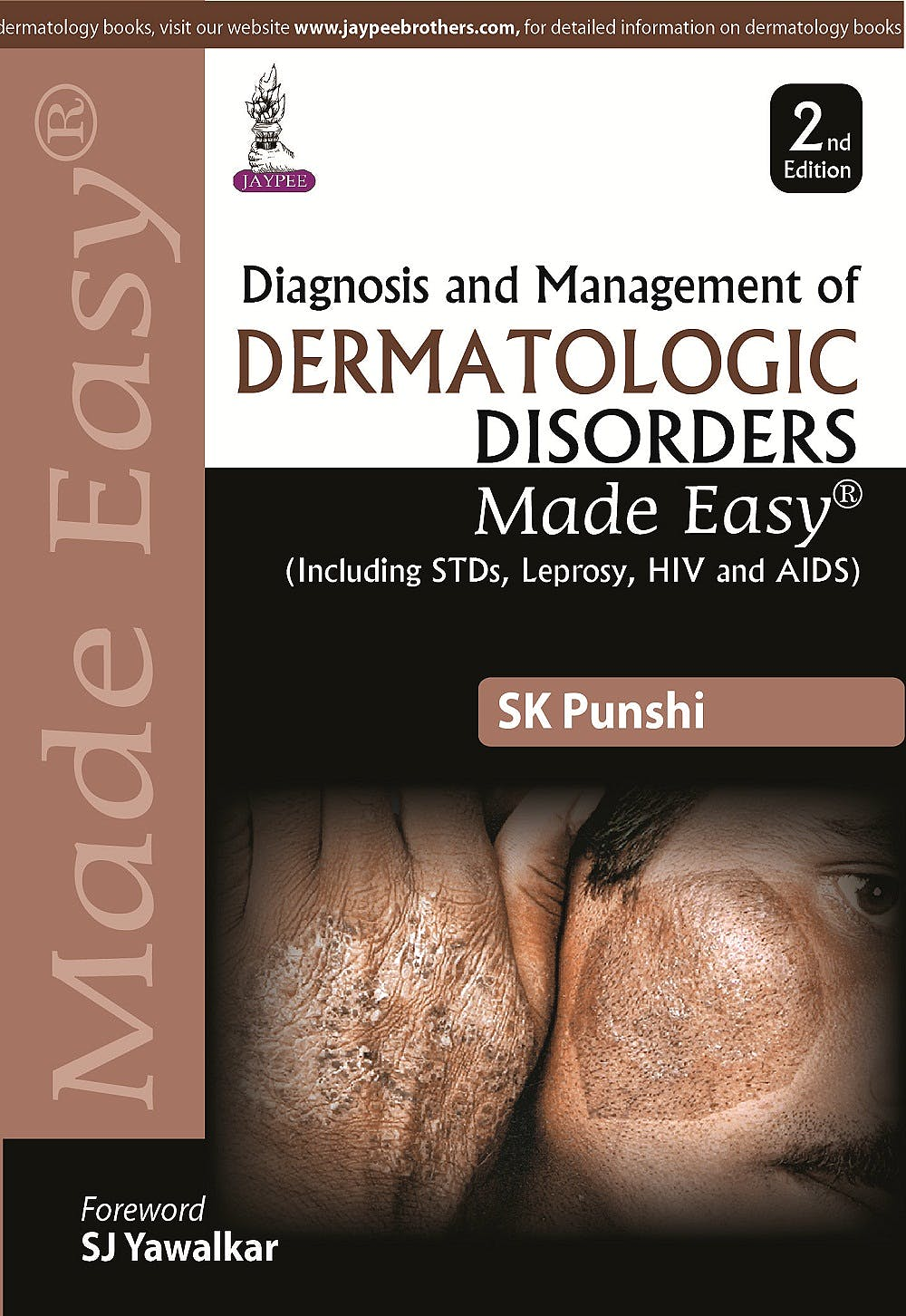 Portada del libro 9789351527930 Diagnosis and Management of Dermatologic Disorders Made Easy (Including Stds, Leprosy, Hiv and Aids)