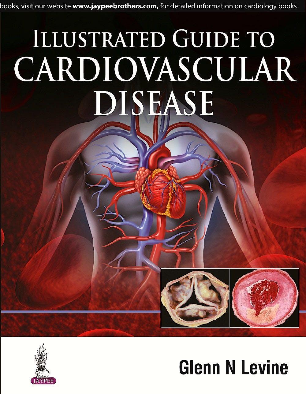 Portada del libro 9789351528449 Illustrated Guide to Cardiovascular Disease