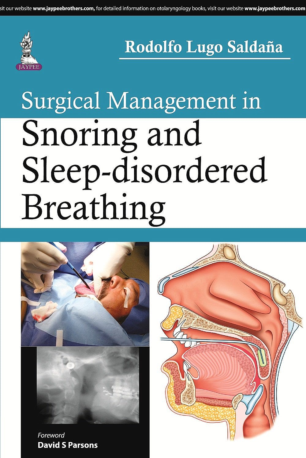 Portada del libro 9789351528890 Surgical Management in Snoring and Sleep-Disordered Breathing
