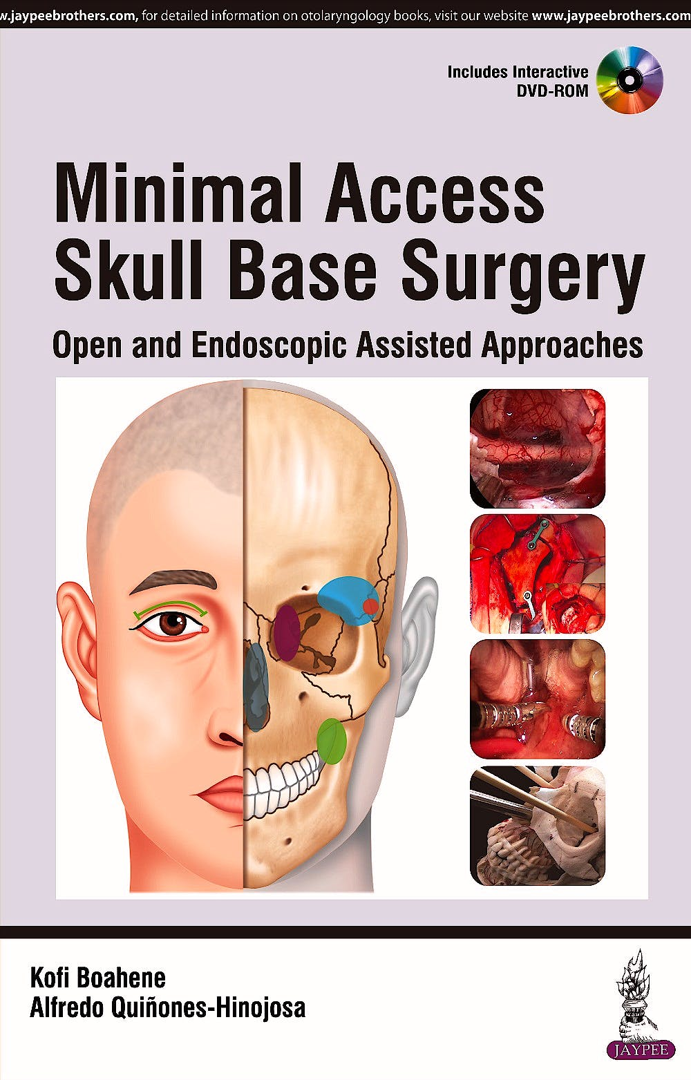 Portada del libro 9789351529347 Minimal Access Skull Base Surgery. Open and Endoscopic Assisted Approaches + DVD-ROM
