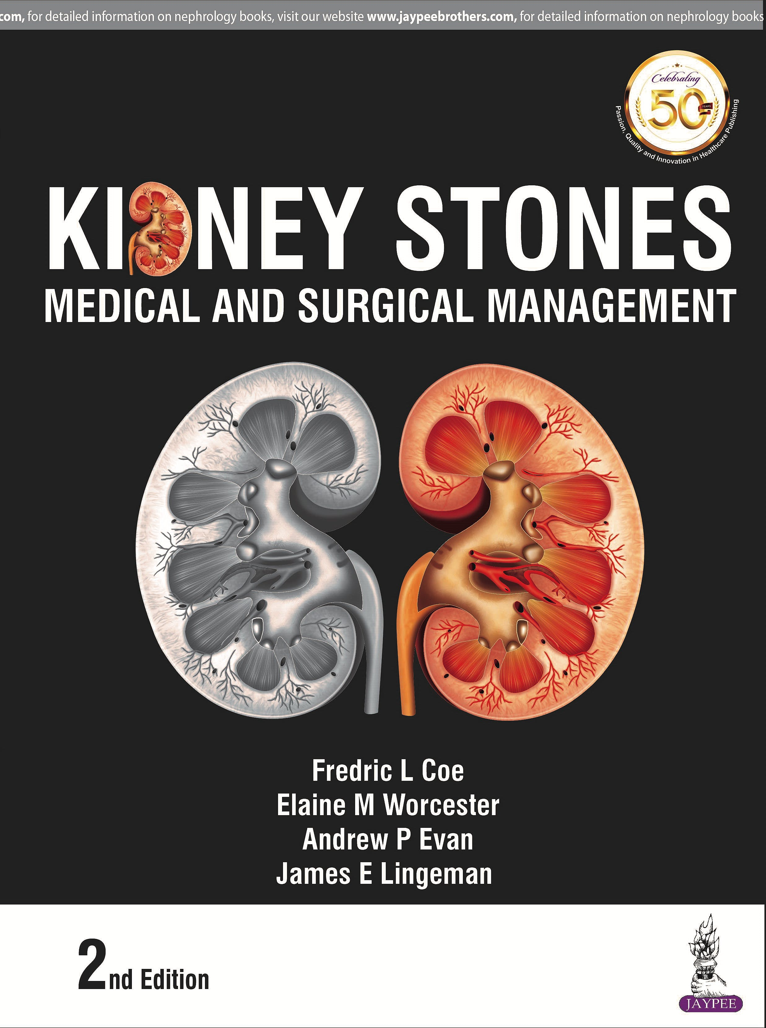 Portada del libro 9789351529422 Kidney Stones. Medical and Surgical Management