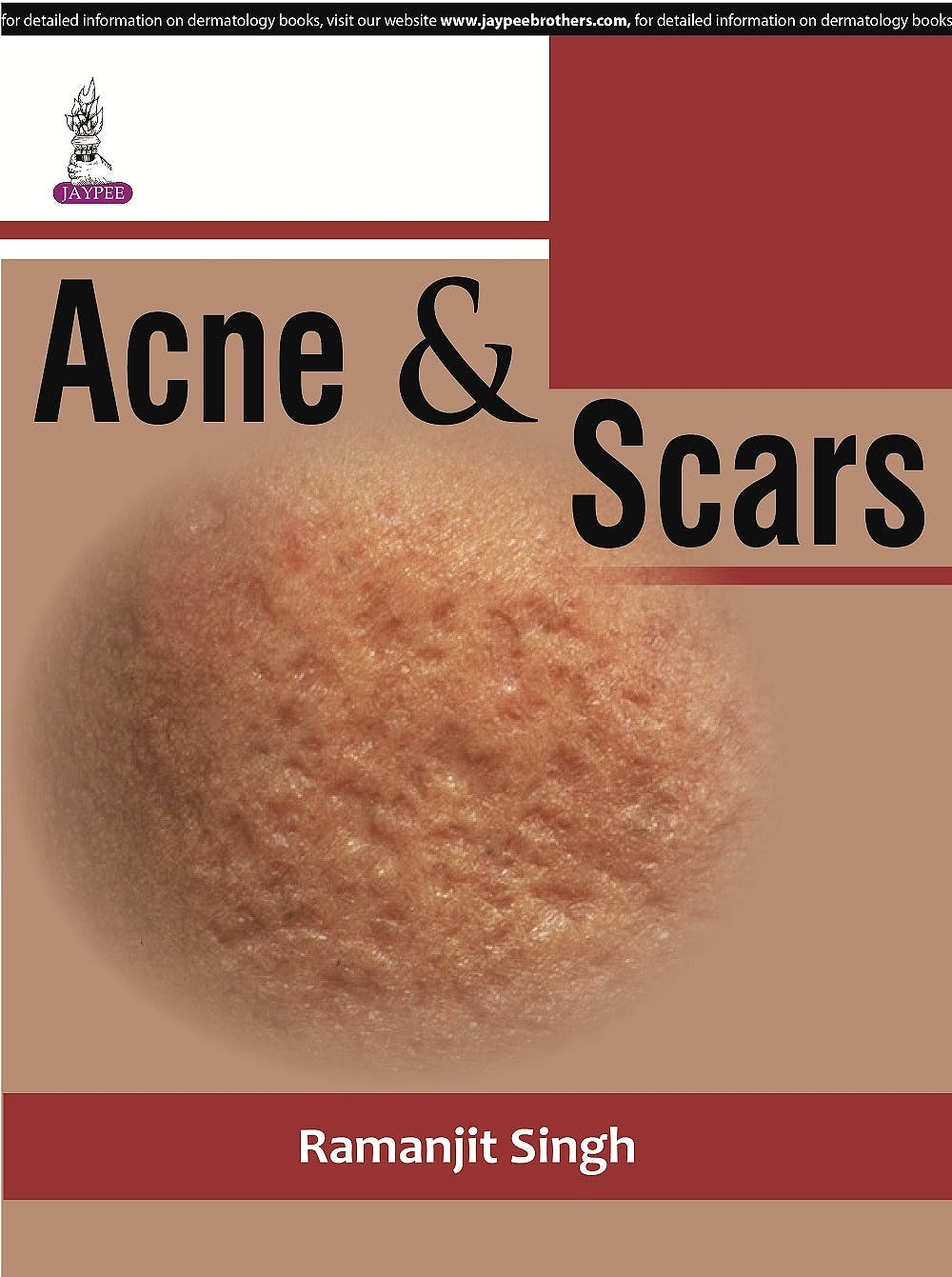 Portada del libro 9789351529699 Acne and Scars