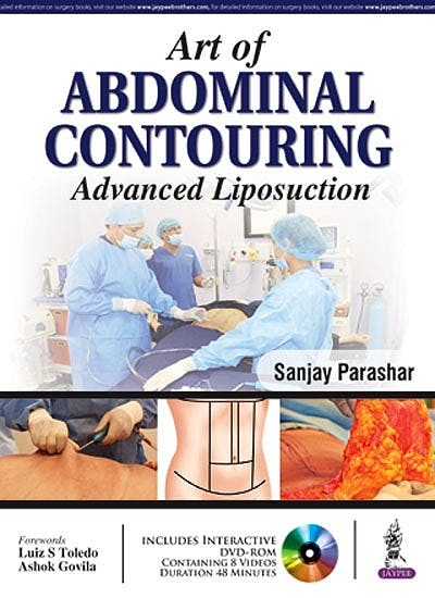 Portada del libro 9789352500239 Art of Abdominal Contouring. Advanced Liposuction + DVD