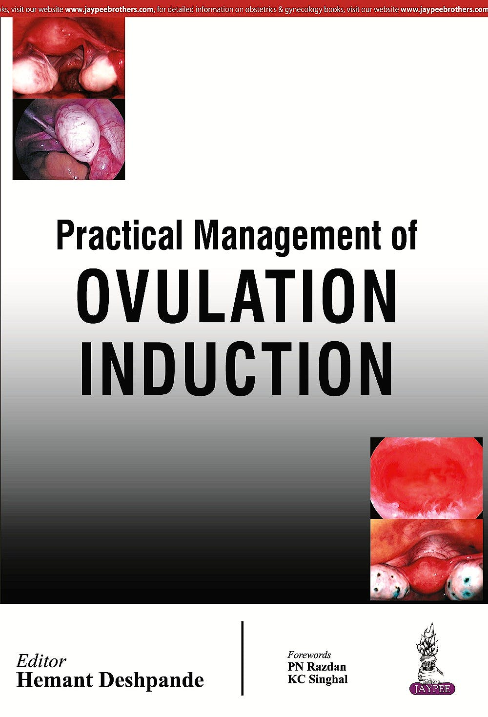 Portada del libro 9789352500284 Practical Management of Ovulation Induction
