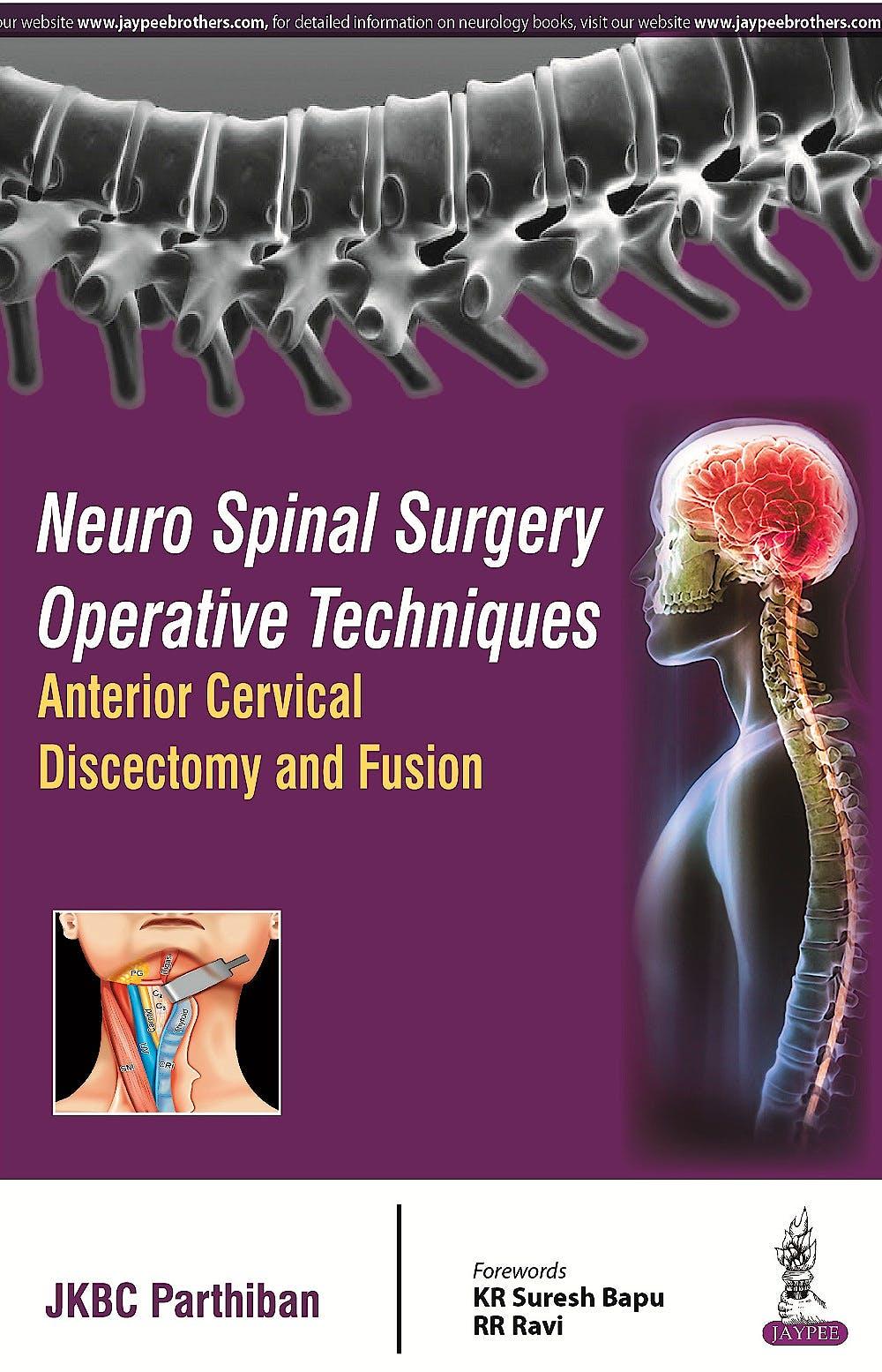 Portada del libro 9789352501304 Neuro Spinal Surgery Operative Techniques. Anterior Cervical Discectomy and Fusion