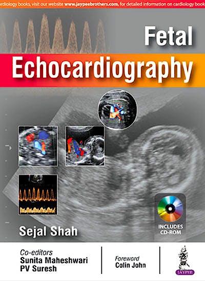 Portada del libro 9789352701100 Fetal Echocardiography (Includes CD-ROM)