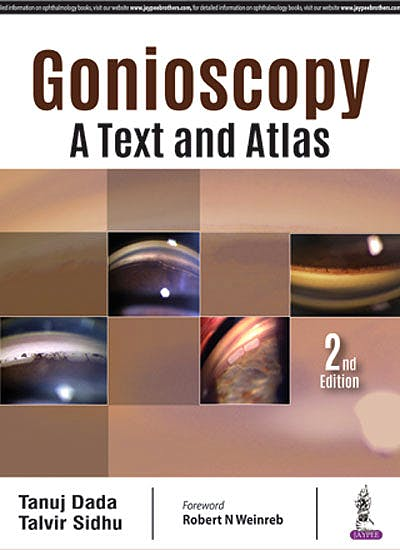 Portada del libro 9789352701520 Gonioscopy. A Text and Atlas