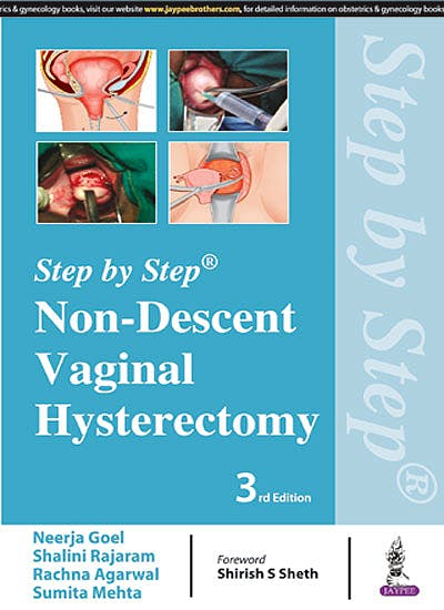 Portada del libro 9789352701759 Step by Step Non-Descent Vaginal Hysterectomy