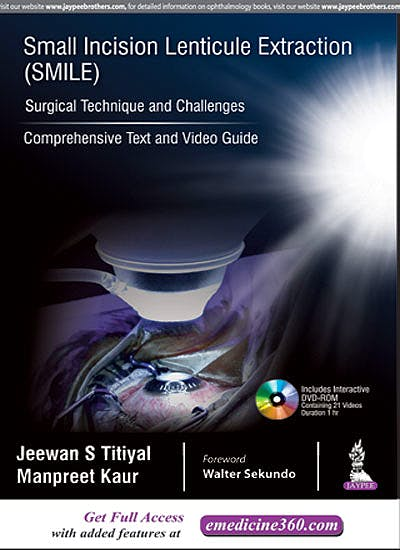 Portada del libro 9789352702145 Small Incision Lenticule Extraction (SMILE). Surgical Technique and Challenges. Comprehensive Text and Video Guide + DVD-ROM