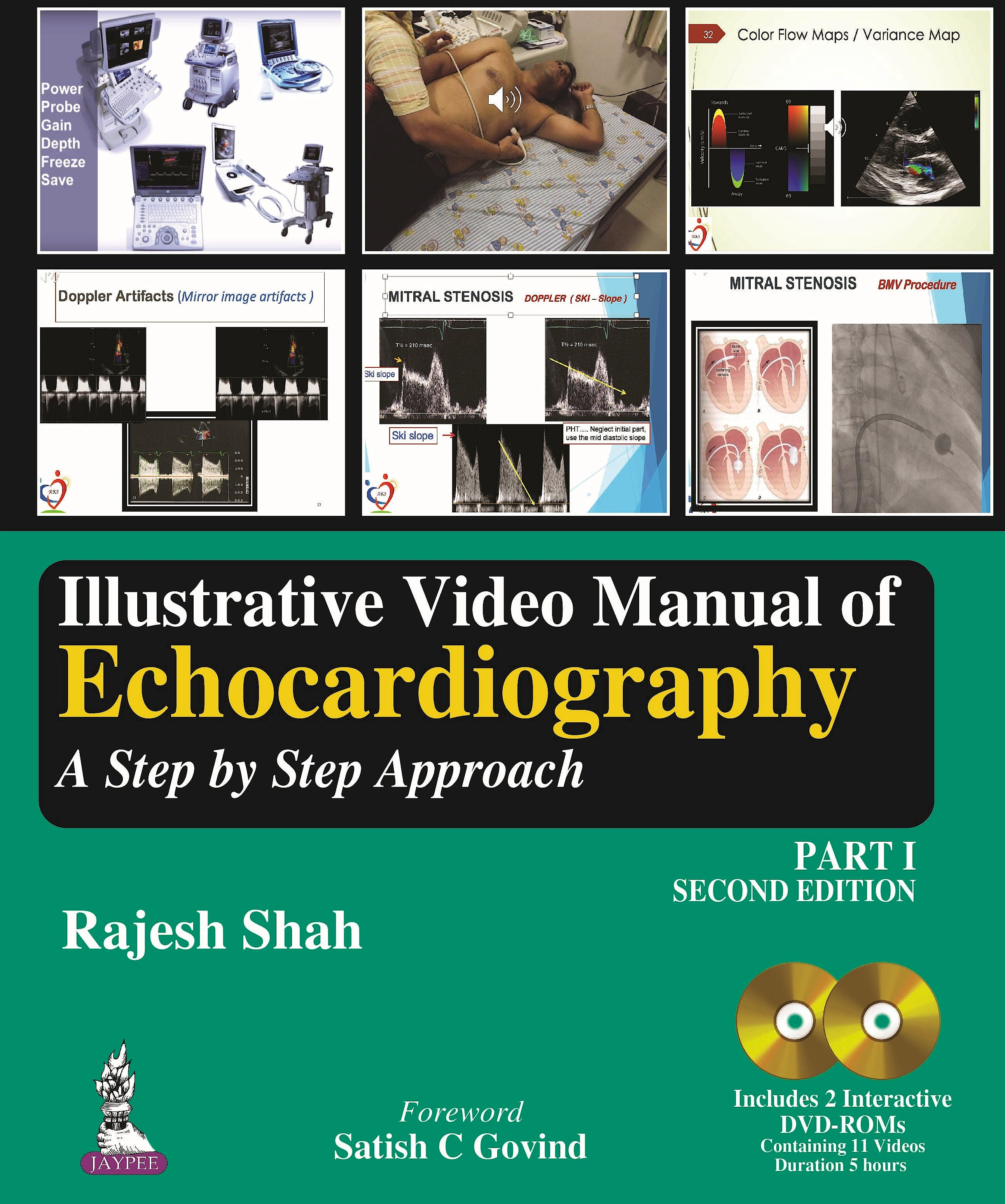 Portada del libro 9789352705047 Illustrative Video Manual of Echocardiography. A Step by Step Approach, Part 1 + 2 DVD-ROM