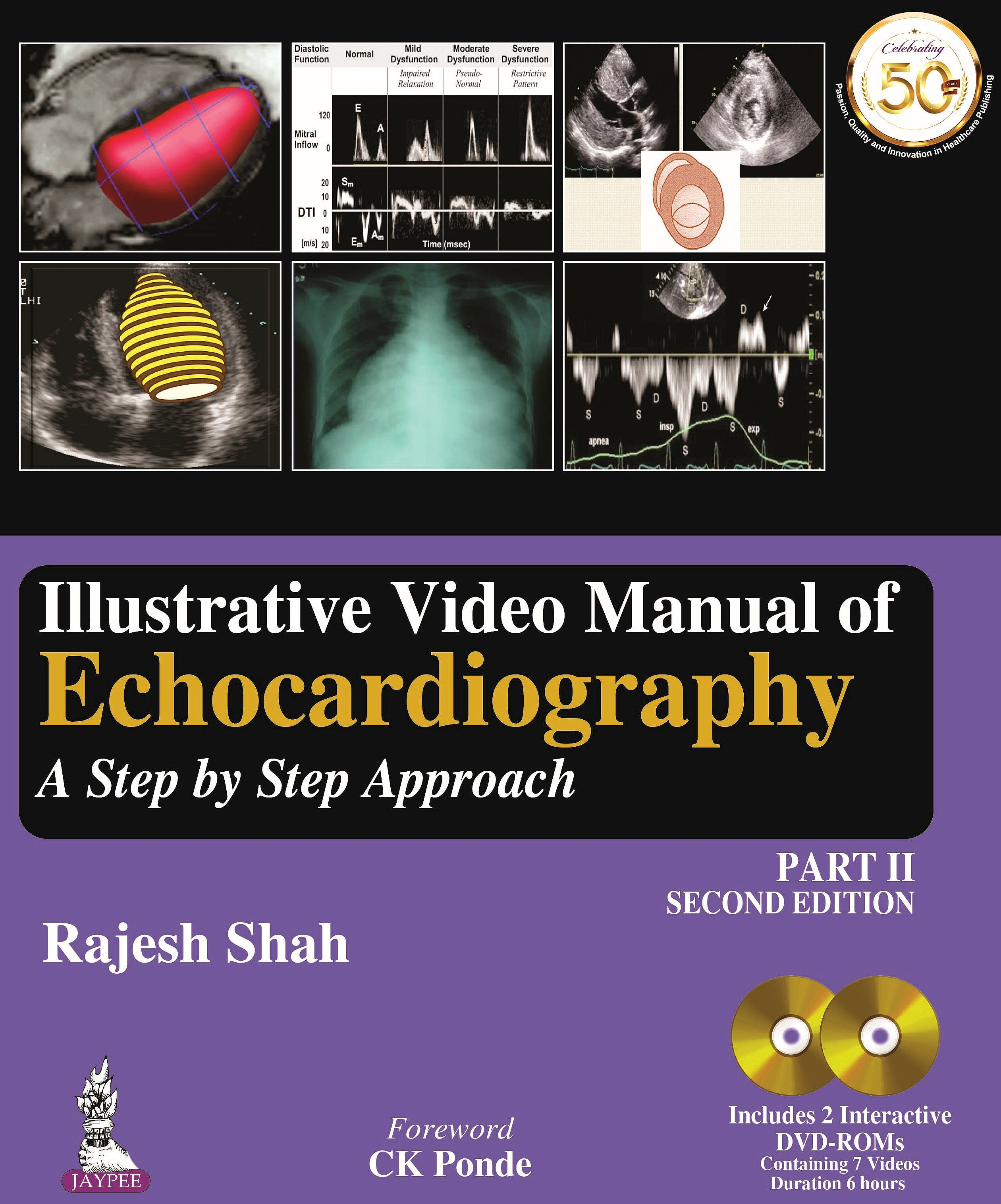 Portada del libro 9789352705634 Illustrative Video Manual of Echocardiography. A Step by Step Approach, Part 2 + 2 DVD-ROM