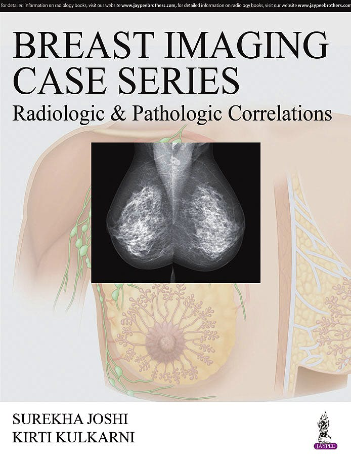 Portada del libro 9789385999109 Breast Imaging Case Series: Radiologic and Pathologic Correlations