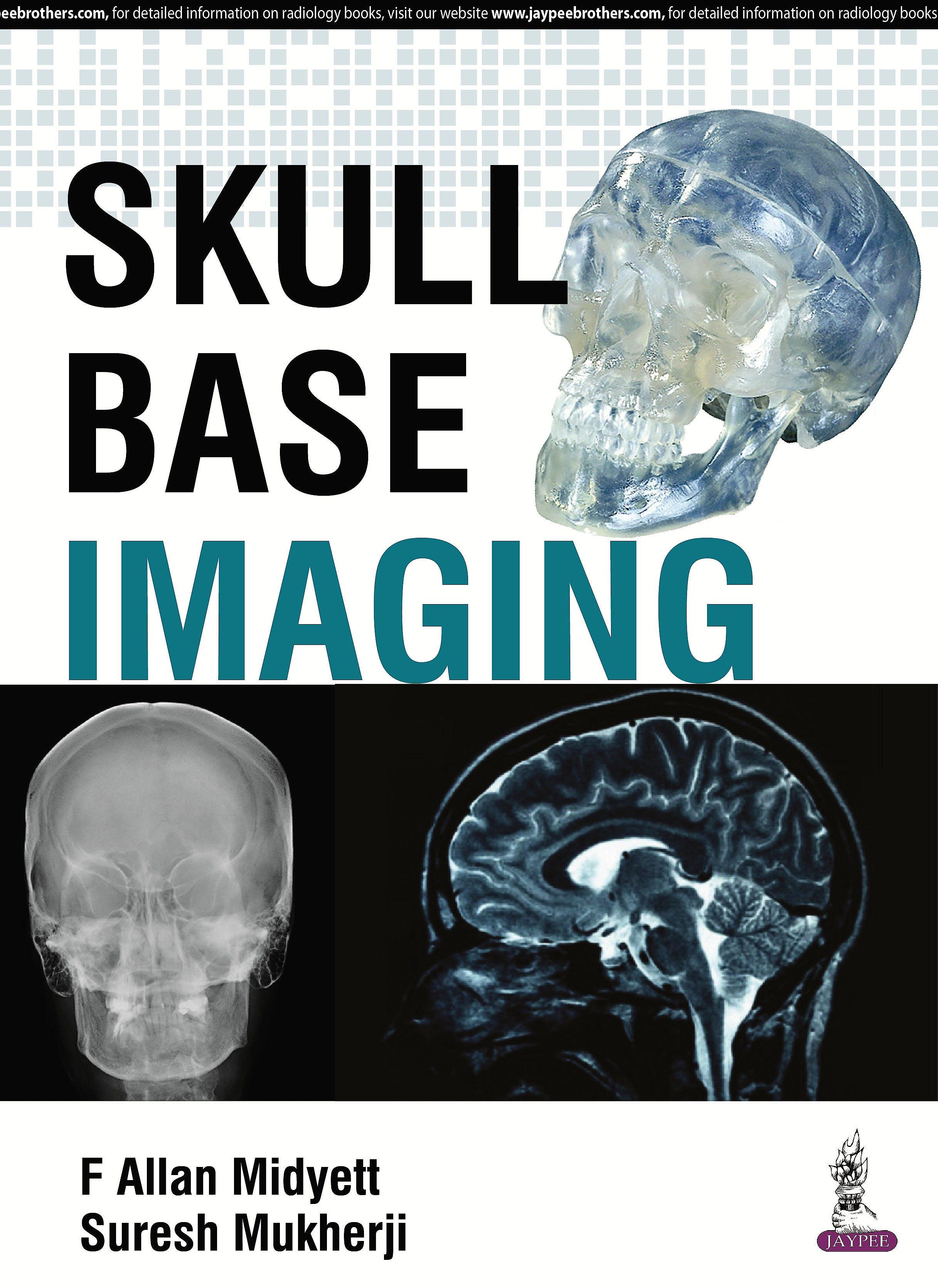 Portada del libro 9789385999314 Skull Base Imaging