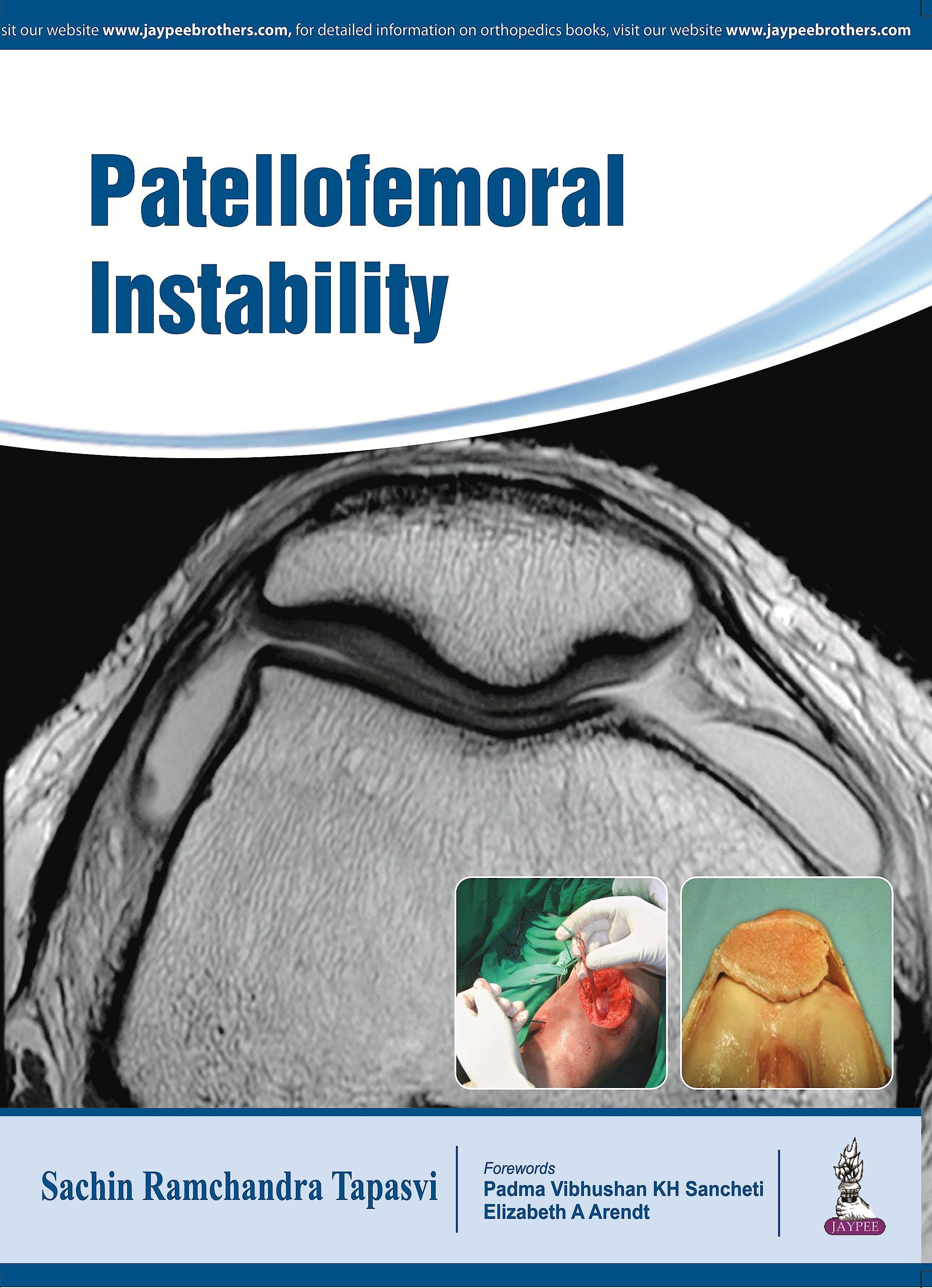 Portada del libro 9789385999666 Patellofemoral Instability