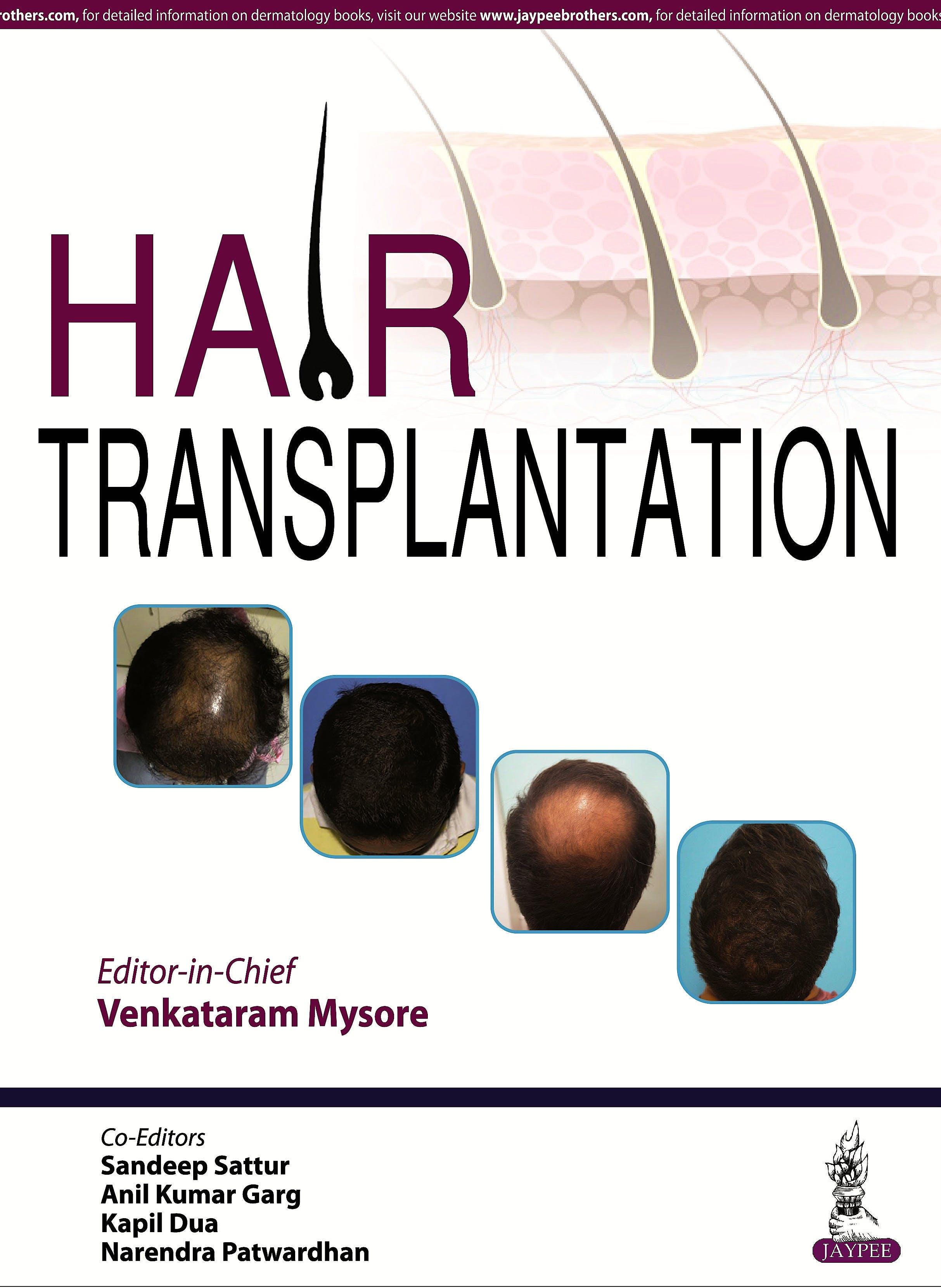 Portada del libro 9789385999833 Hair Transplantation