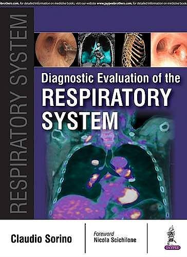 Portada del libro 9789386056009 Diagnostic Evaluation of the Respiratory System