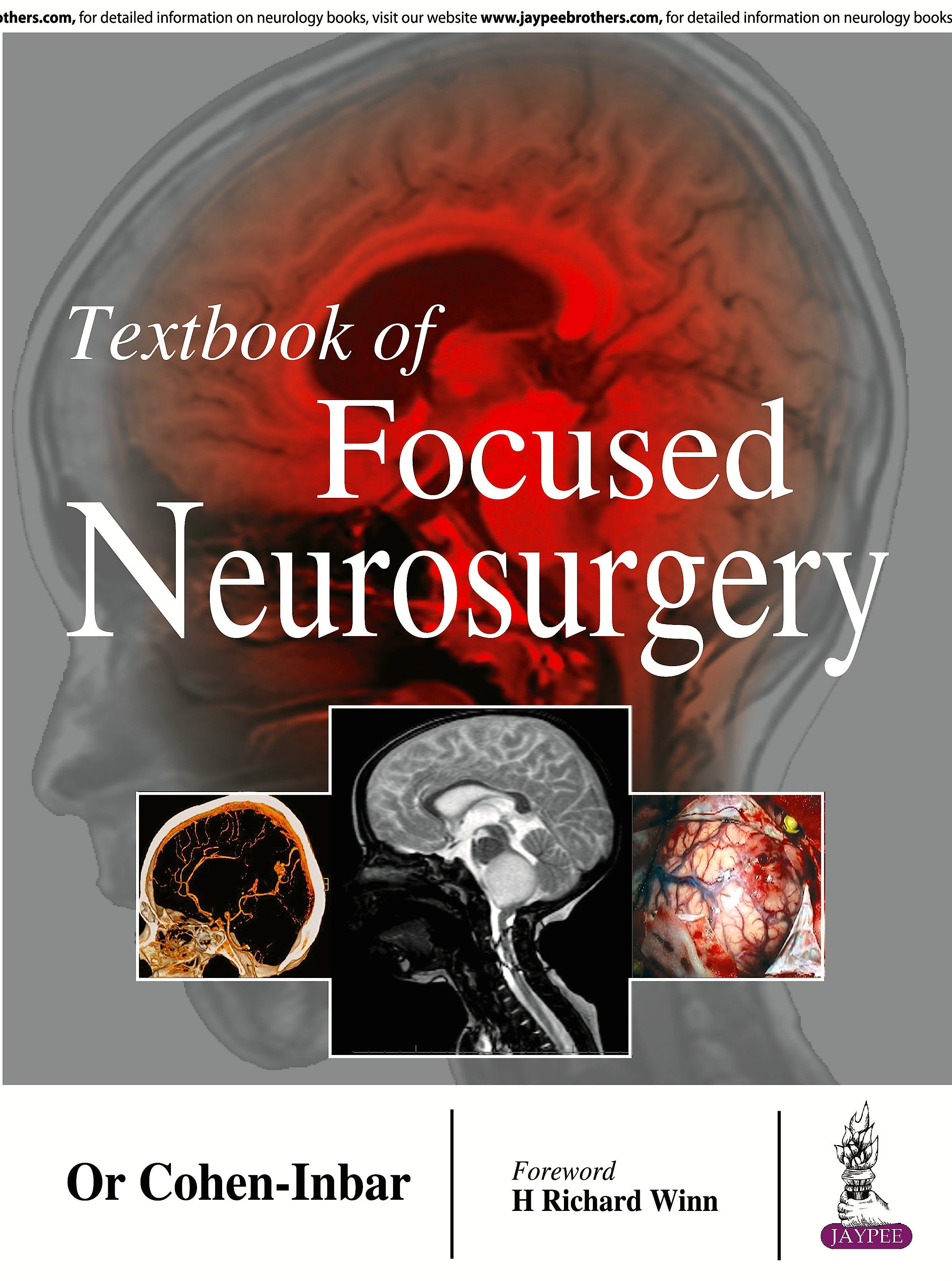 Portada del libro 9789386056122 Textbook of Focused Neurosurgery