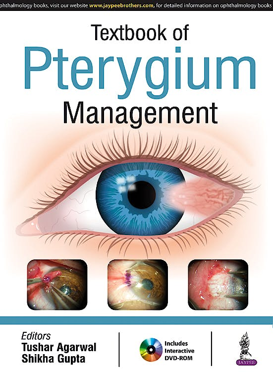 Portada del libro 9789386261540 Textbook of Pterygium Management