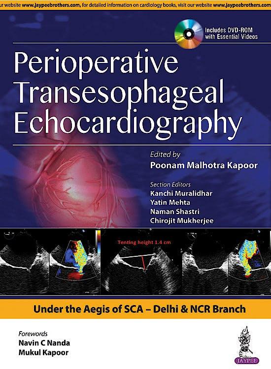 Portada del libro 9789386261946 Perioperative Transeasophageal Echocardiography + DVD