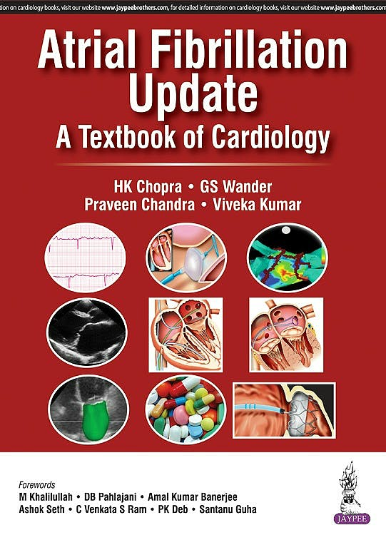 Portada del libro 9789386261953 Atrial Fibrillation Update. a Textbook of Cardiology