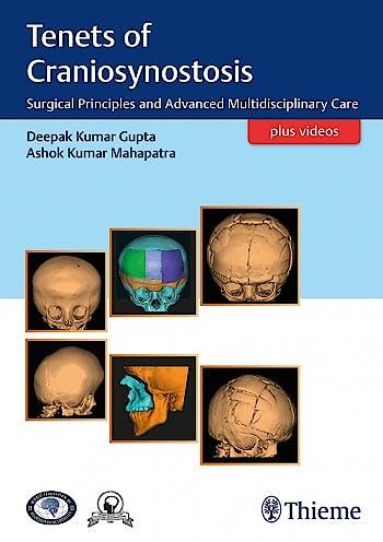 Portada del libro 9789386293565 Tenets of Craniosynostosis. Surgical Principles and Advanced Multidisciplinary Care + Videos