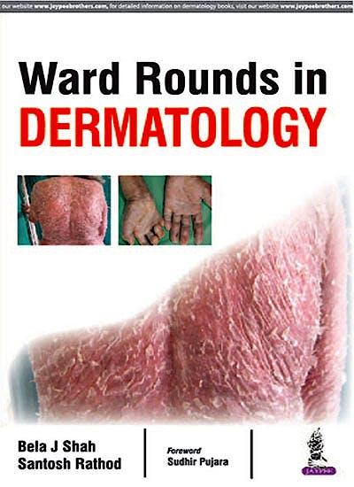 Portada del libro 9789386322685 Ward Rounds in Dermatology