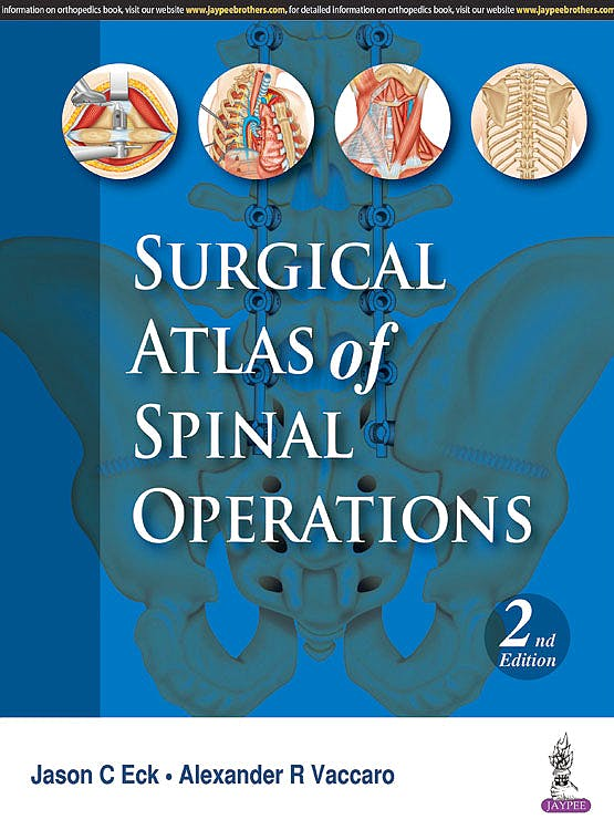 Portada del libro 9789386322708 Surgical Atlas of Spinal Operations