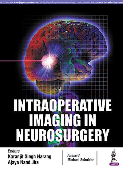 Portada del libro 9789386322906 Intraoperative Imaging in Neurosurgery