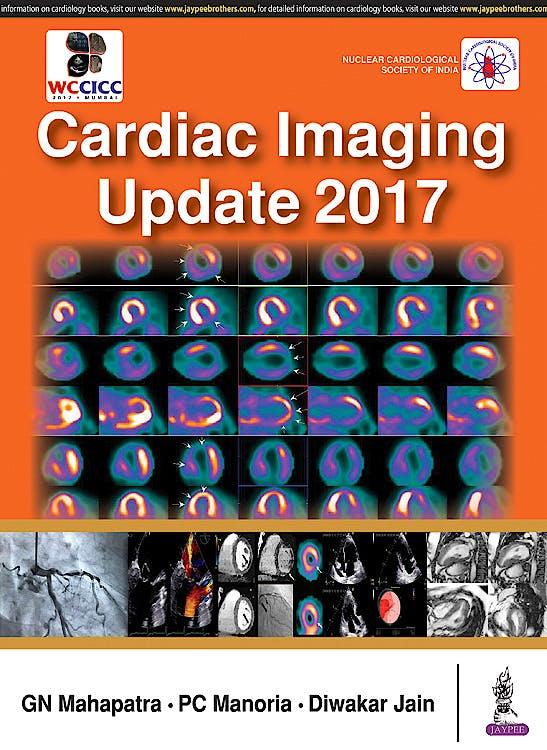 Portada del libro 9789386322937 Cardiac Imaging Update 2017