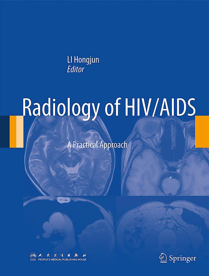 Portada del libro 9789400778221 Radiology of Hiv/aids. a Practical Approach