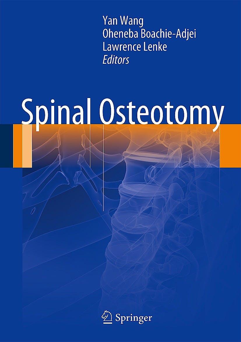 Portada del libro 9789401780377 Spinal Osteotomy (Hardcover)