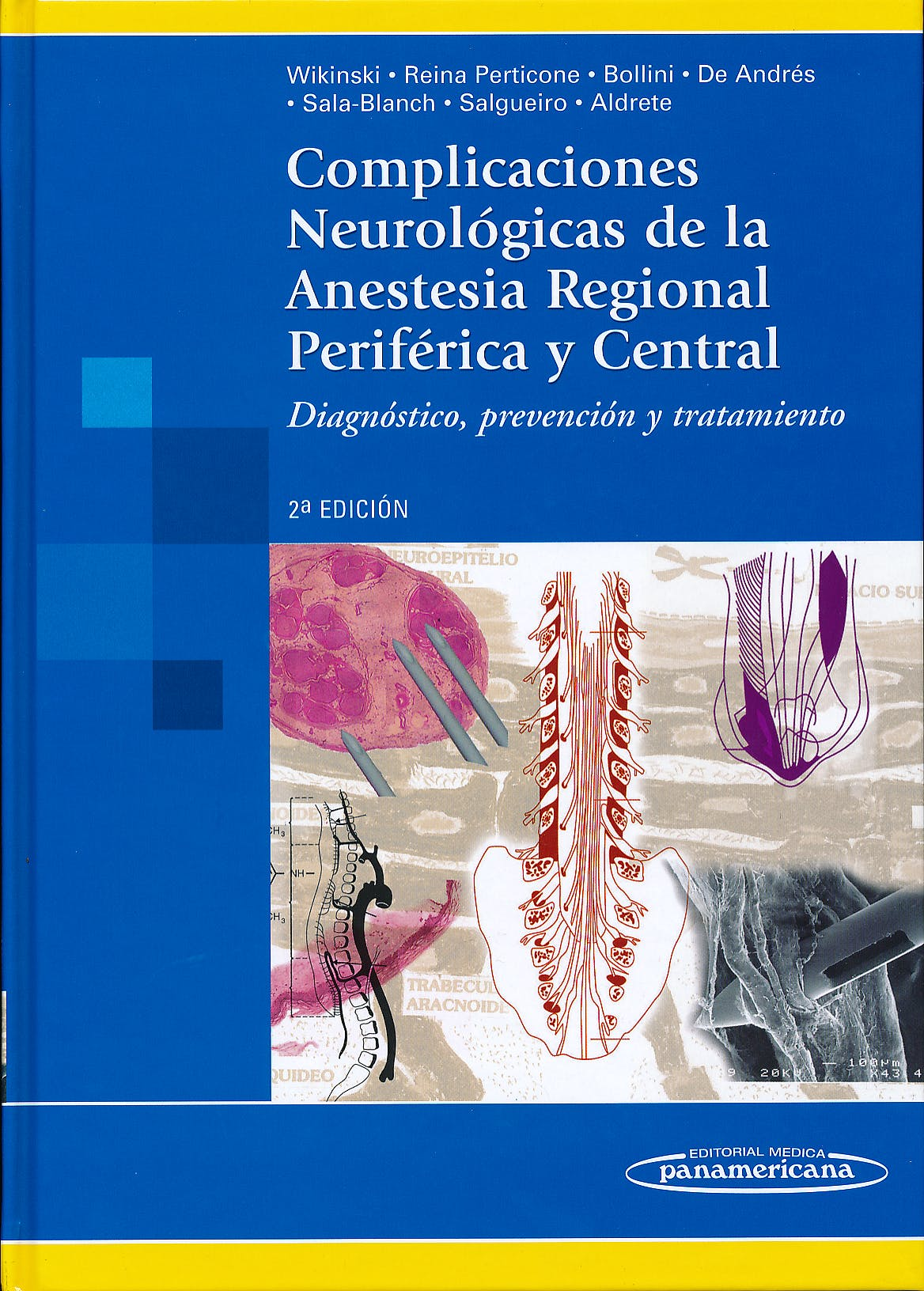 Portada del libro 9789500601306 Complicaciones Neurologicas de la Anestesia Regional Periferica y Central. Diagnostico, Prevencion y Tratamiento