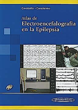 Portada del libro 9789500602600 Atlas de Electroencefalografía en la Epilepsia