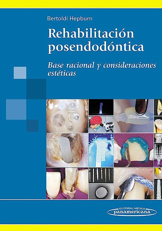Portada del libro 9789500602655 Rehabilitacion Posendodontica. Base Racional y Consideraciones Esteticas