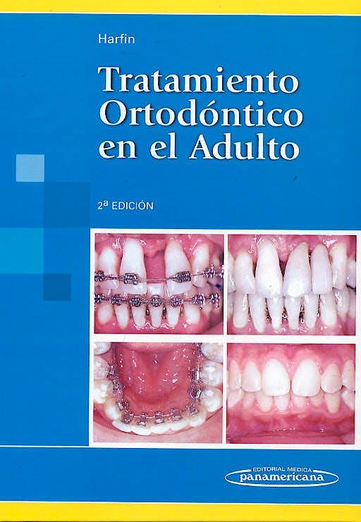 Portada del libro 9789500609296 Tratamiento Ortodontico en el Adulto