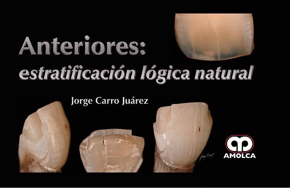 Portada del libro 9789585426313 Anteriores: Estratificación Lógica Natural
