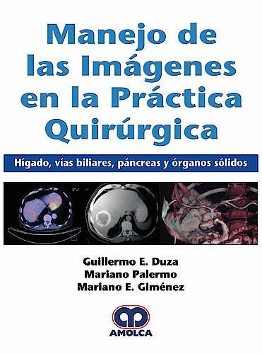 Portada del libro 9789585426405 Manejo de las Imágenes en la Práctica Quirúrgica. Hígado, Vías Biliares, Páncreas y Órganos Sólidos