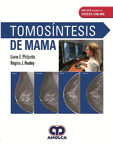 Portada del libro 9789585426467 Tomosíntesis de Mama + Videos Online