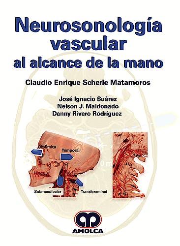 Portada del libro 9789585426535 Neurosonología Vascular al Alcance de la Mano