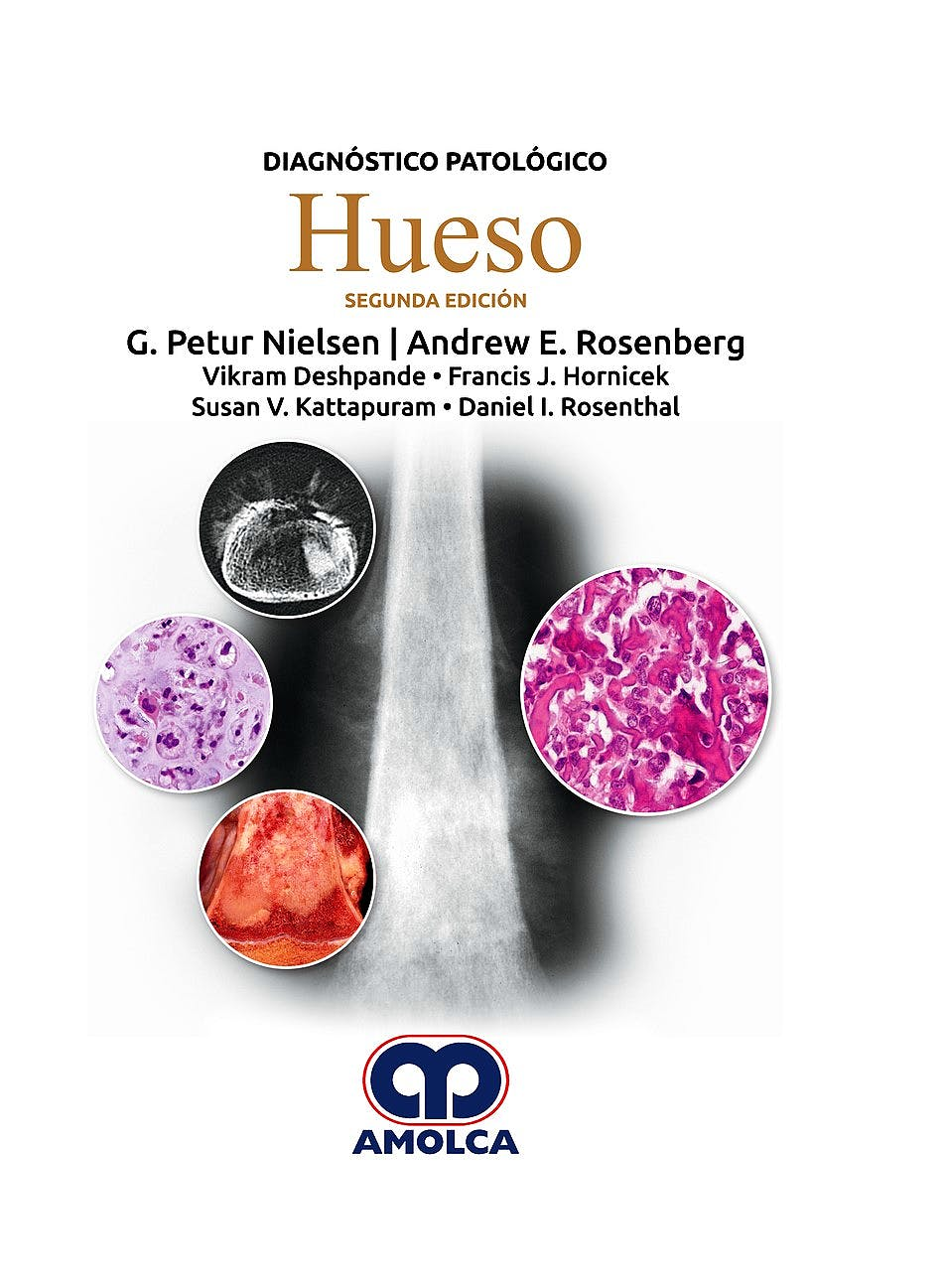 Portada del libro 9789585426580 Diagnóstico Patológico. Hueso
