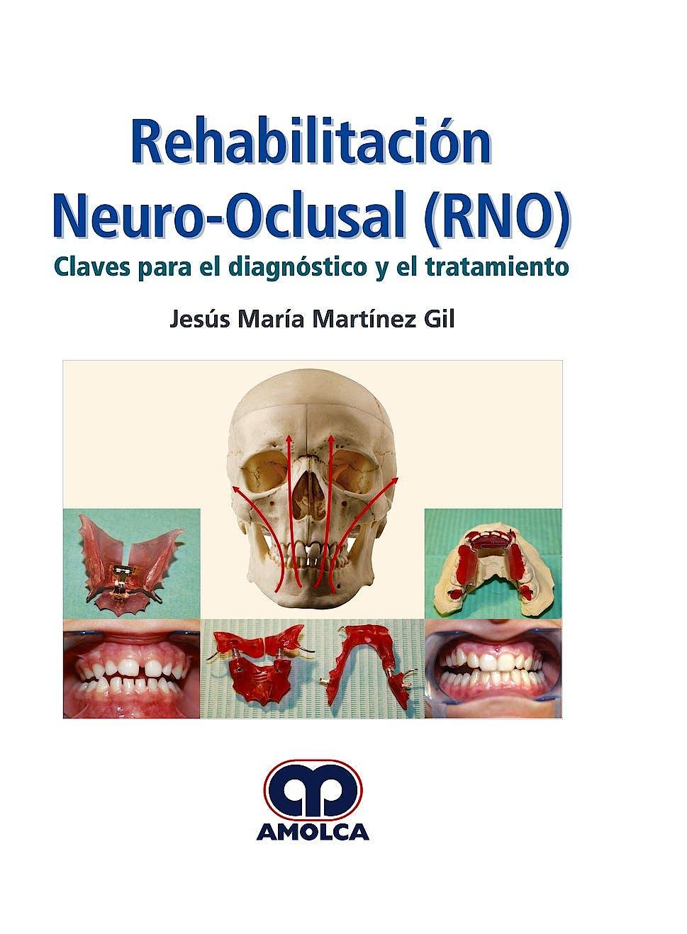 Portada del libro 9789585426641 Rehabilitación Neuro-Oclusal (RNO). Claves para el Diagnóstico y el Tratamiento