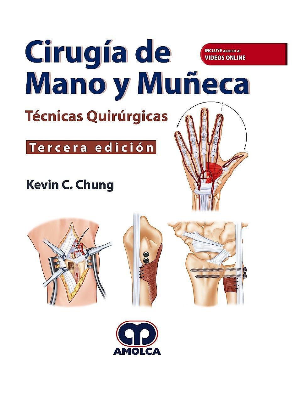 Portada del libro 9789585426818 Cirugía de Mano y Muñeca. Técnicas Quirúrgicas (Incluye Acceso a Vídeos Online en Inglés)