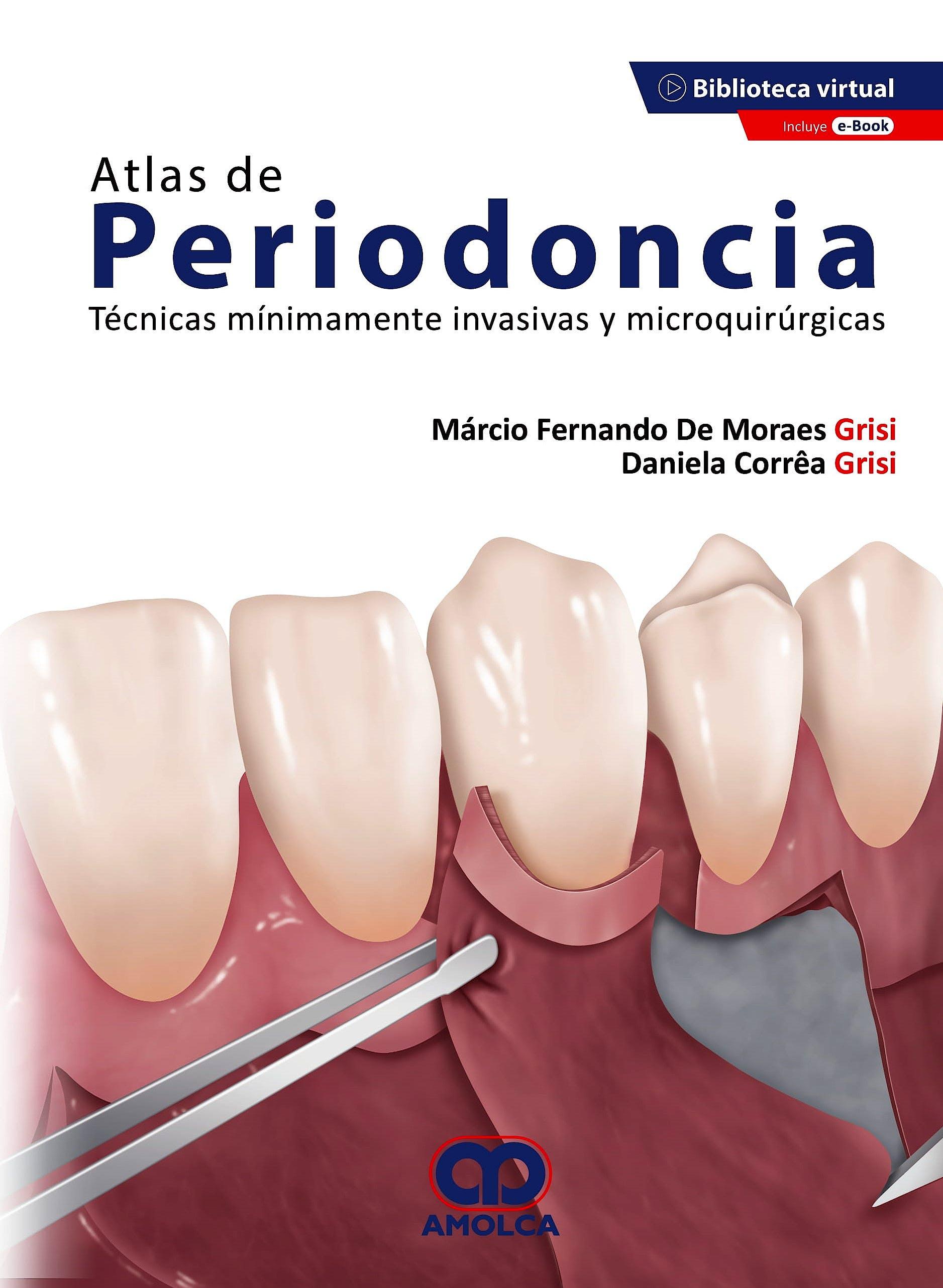 Portada del libro 9789585598652 Atlas de Periodoncia. Técnicas Mínimamente Invasivas y Microquirúrgicas + E-Book