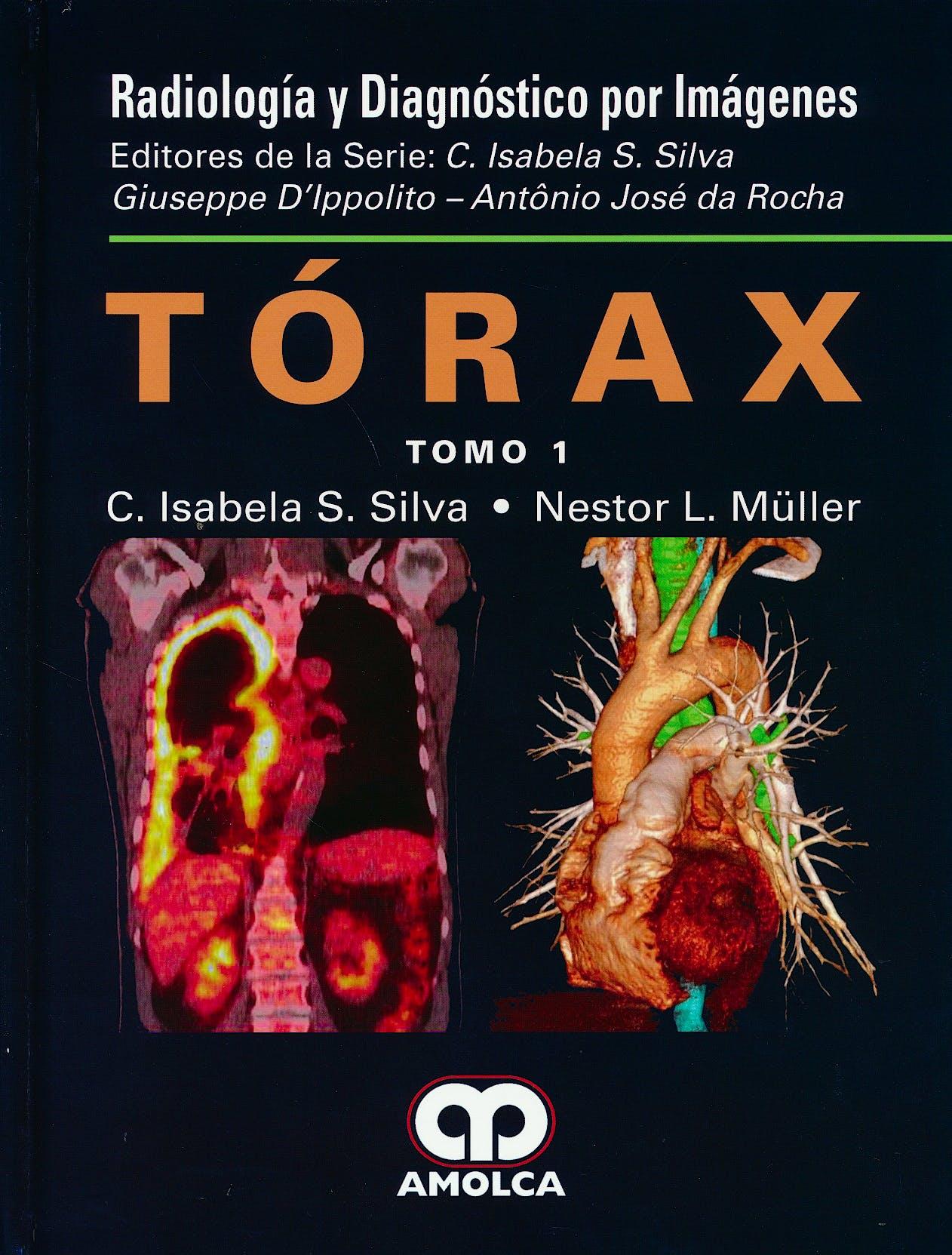 Portada del libro 9789585911307 Tórax, 2 Vols. (Serie Radiología y Diagnóstico por Imágenes)