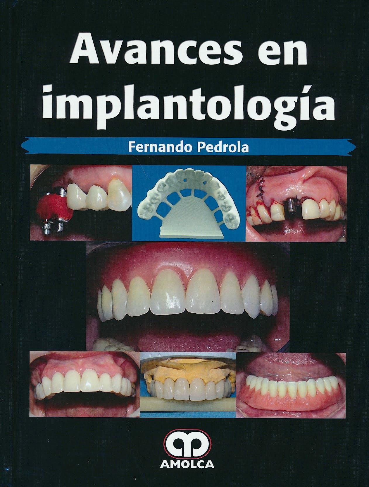 Portada del libro 9789585911338 Avances en Implantología